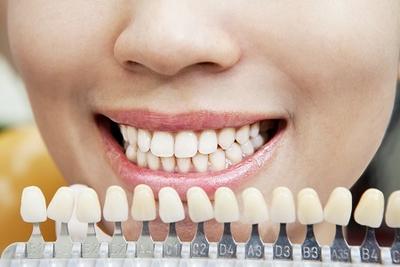 Perfect jouw tanden bleken Amersfoort